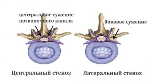 Центральный и латеральный стеноз
