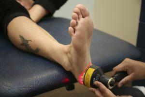 Лазерное лечение пяточной шпоры