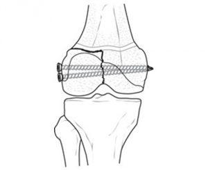 Оперативная фиксация отломка кости