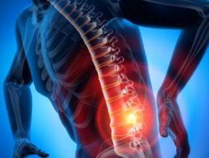 Лечение остеохондроза Бадягой-Форте