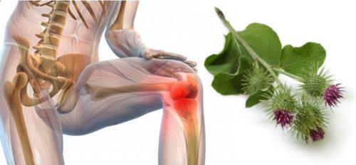 Лечение суставов лопухом