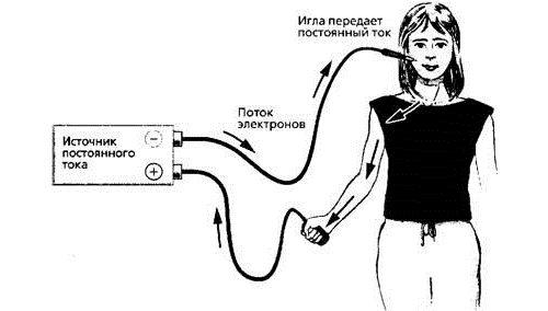 Лечение током шейного отдела позвоночника