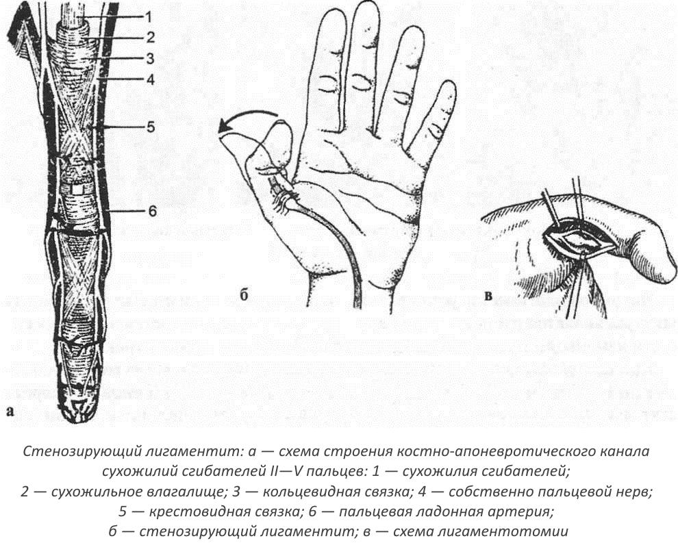 Лигоментотомия