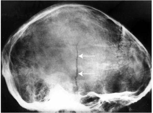 Линейный перелом на МРТ