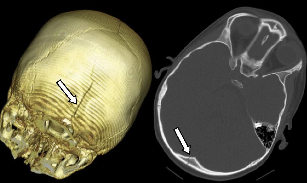 Травма линейный перелом затылочной кости