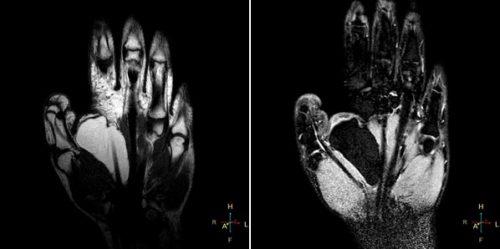 Липома кисти на МРТ
