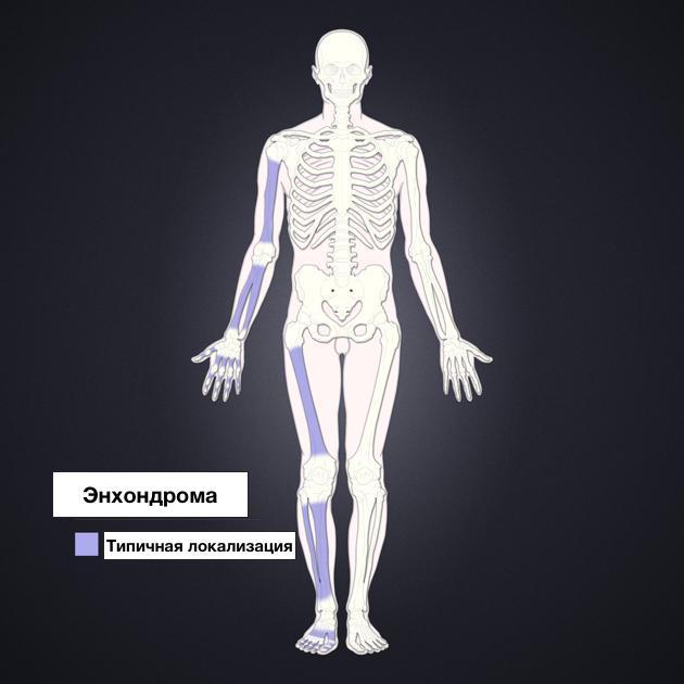 Локализация энхондромы