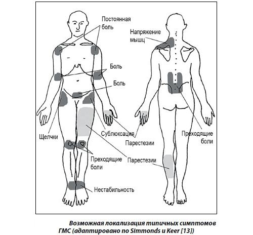 Симптомы синдрома гипермобильности