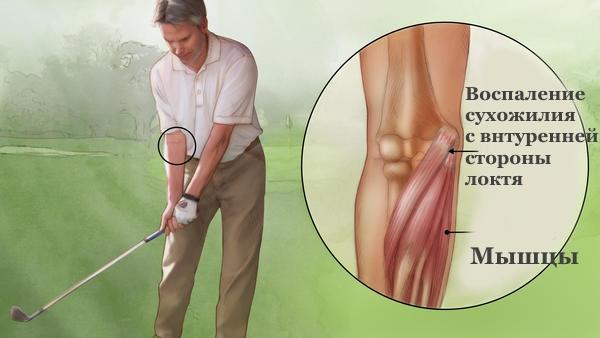Боль при локте гольфиста