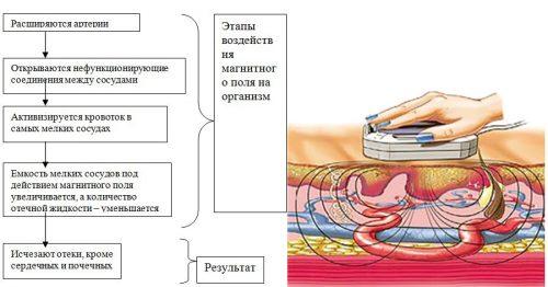 Функции магнитотерапии