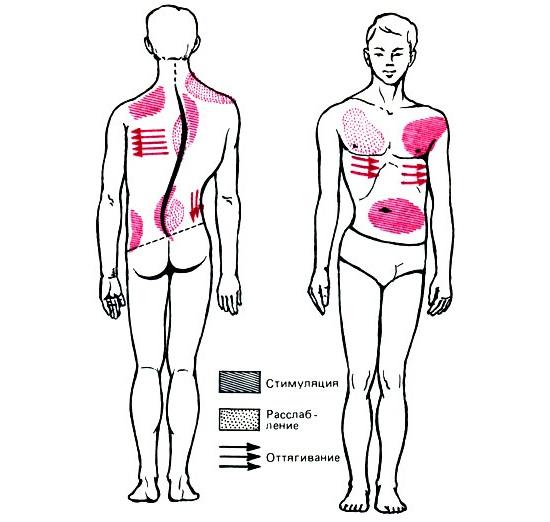 Массаж мышц спины при сколиозе
