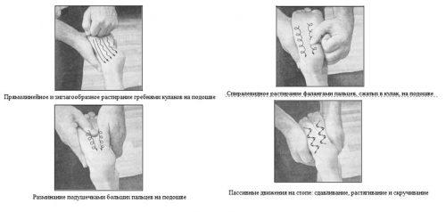 Массаж стопы при плоскостопии