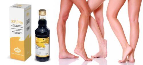 Медицинская желчь от косточек на ногах