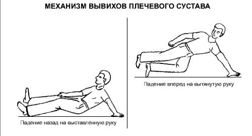 Механизм появления вывиха плеча