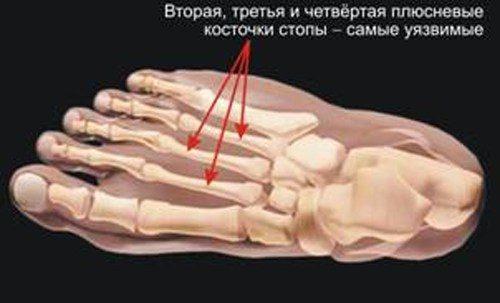 Места маршевых переломов костей