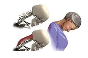Опущение головы при миастении глотки