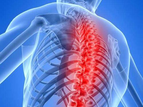 Миелопатия грудного отдела