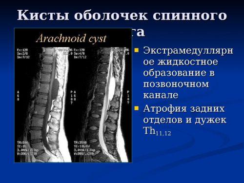 МРТ диагностика кист позвоночника