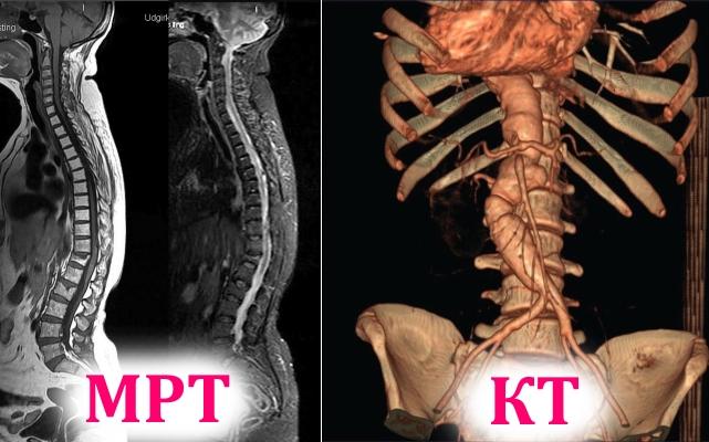 Снимки МРТ и КТ позвоночника