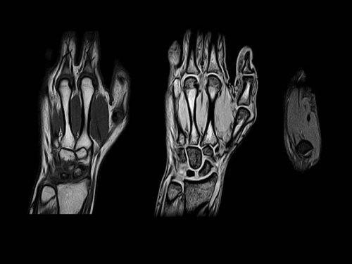МРТ диагностика кисти руки