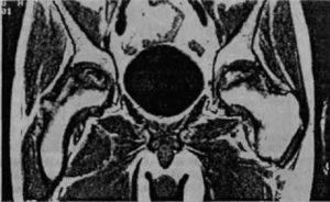 Коксартроз на МРТ снимке
