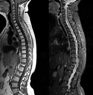 МРТ нарушений позвоночника