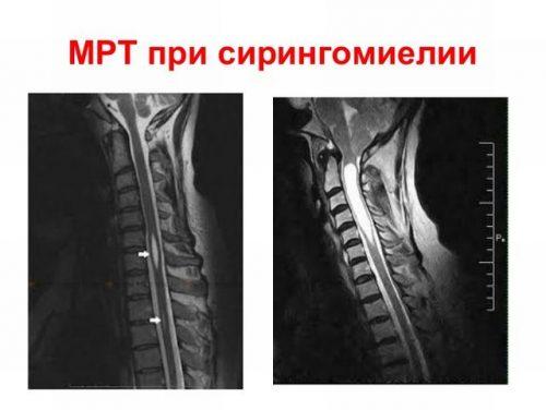 Сирингомиелия на МРТ снимке
