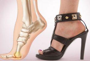Бурсит из-за нагрузки на ноги при ношении неправильной обуви