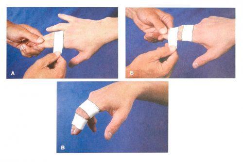 Наложение повязки на пальцы