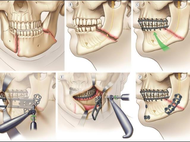 Наложение проволочной шины при переломе челюсти