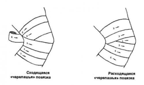 Наложение стерильной повязки на колено