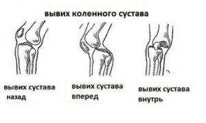Направление вывиха коленного сустава