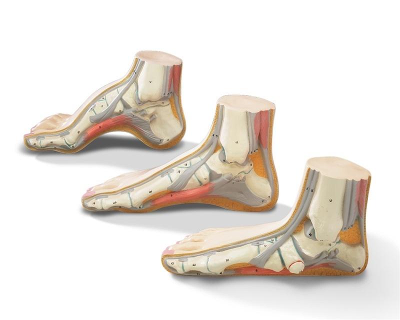 Напряжение связок стопы при плоскостопии
