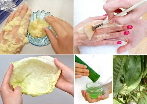 Аппликации для лечения щелкающего пальца
