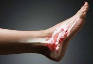 Образование нароста на ноге сбоку при разрушении суставов
