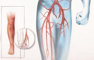 Недостаточное кровообращение ног