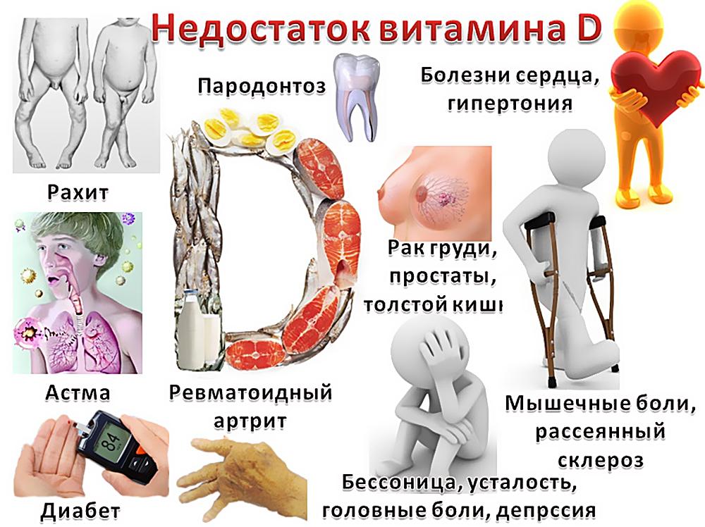 Болезни при недостатке витамина Д
