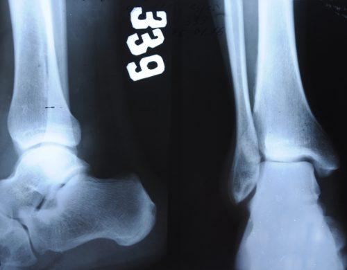 Неровность суставной щели при разрыве связок стопы