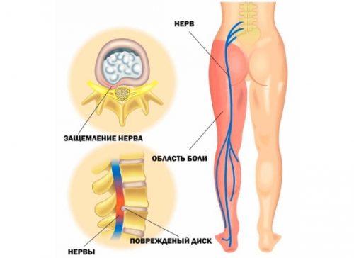 Возникновение неврита седалищного нерва