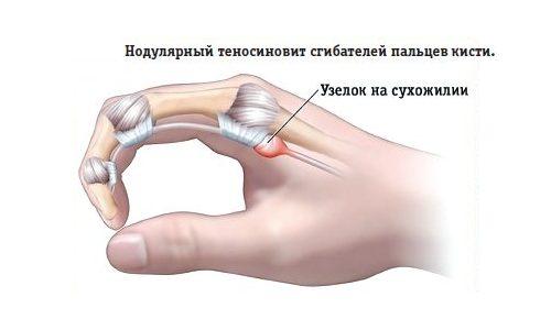 Нодулярный теносиновит