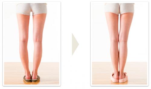 Ноги колесом при о-образном искривлении