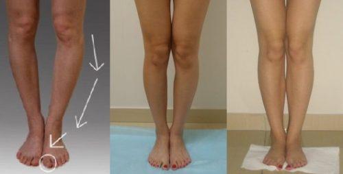 О-образное искривление коленей