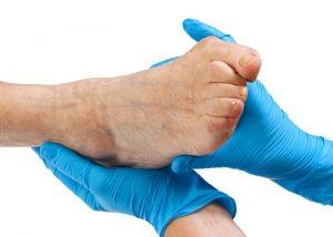 Обращение к врачу при вальгусной деформации стопы