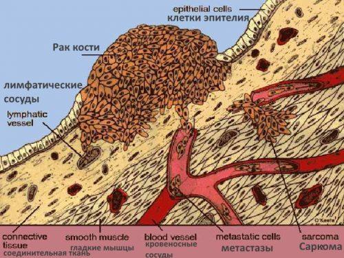 Образование рака кости