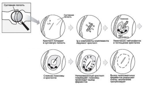 Образование ревматоидного фактора