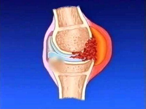 Постепенное воспаление синовидальной оболочки и поражение сустава при олигоартрите