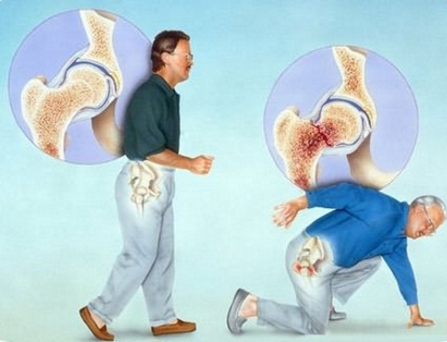 Опасность перелома при остеопорозе