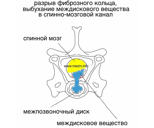 Опасность разрыва фиброзного кольца
