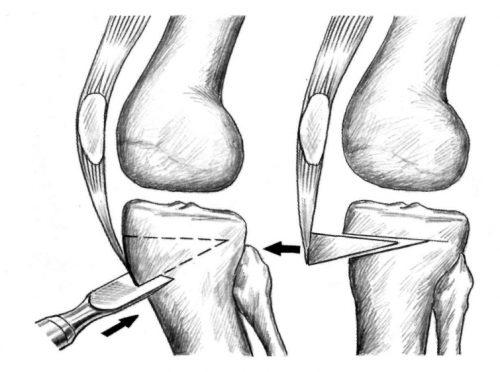 Оперативное лечение контрактуры при гонартрозе