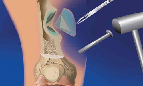 Оперативное лечение остеомиелита